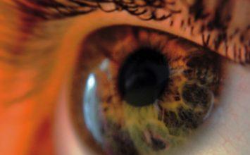 Kontaktne leće – najčešće postavljana pitanja
