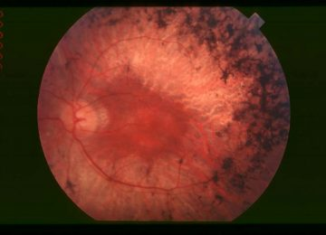 Istraživači otkrili tehniku za poboljšanje stanja retinitis pigmentosa