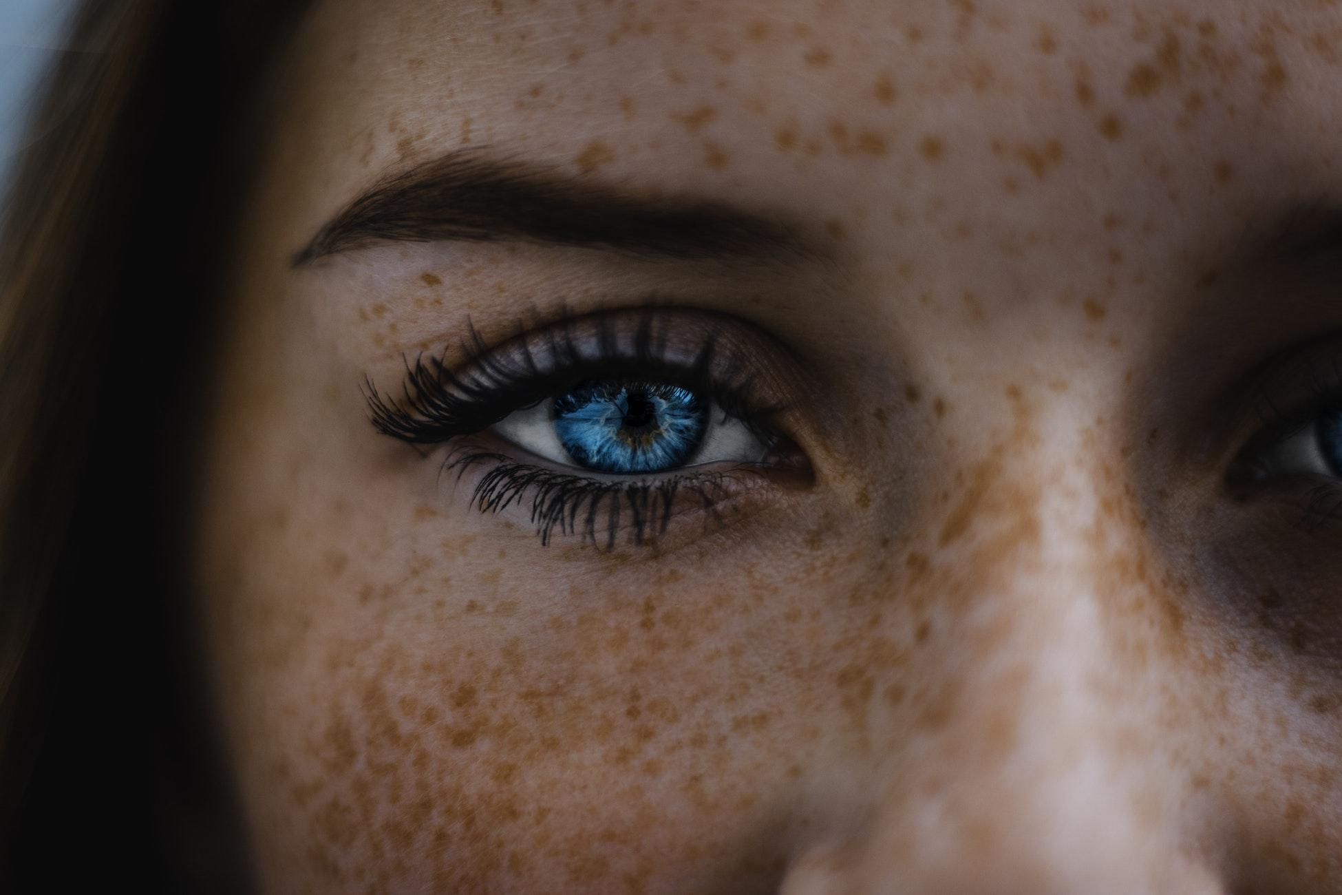 ispravljanje kratkovidnosti kontaktnim lećama
