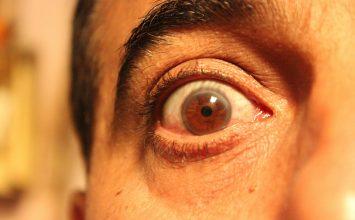 Lagoftalmus ili nemogućnost zatvaranja oka