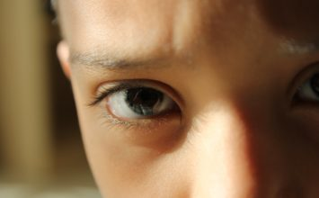 Ruptura makule – uzroci, simptomi i liječenje