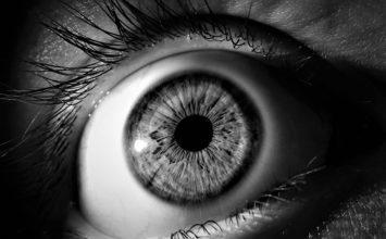 Duaneov sindrom – uzroci i liječenje