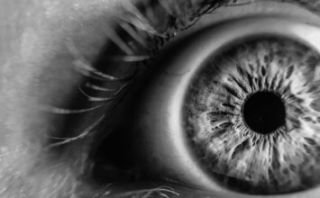 Znate li što su očne pjege i kako nastaju?