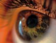 Kako lupus utječe na oči?
