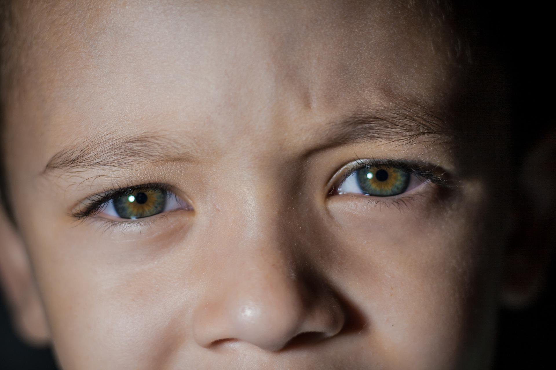 retinoblastom