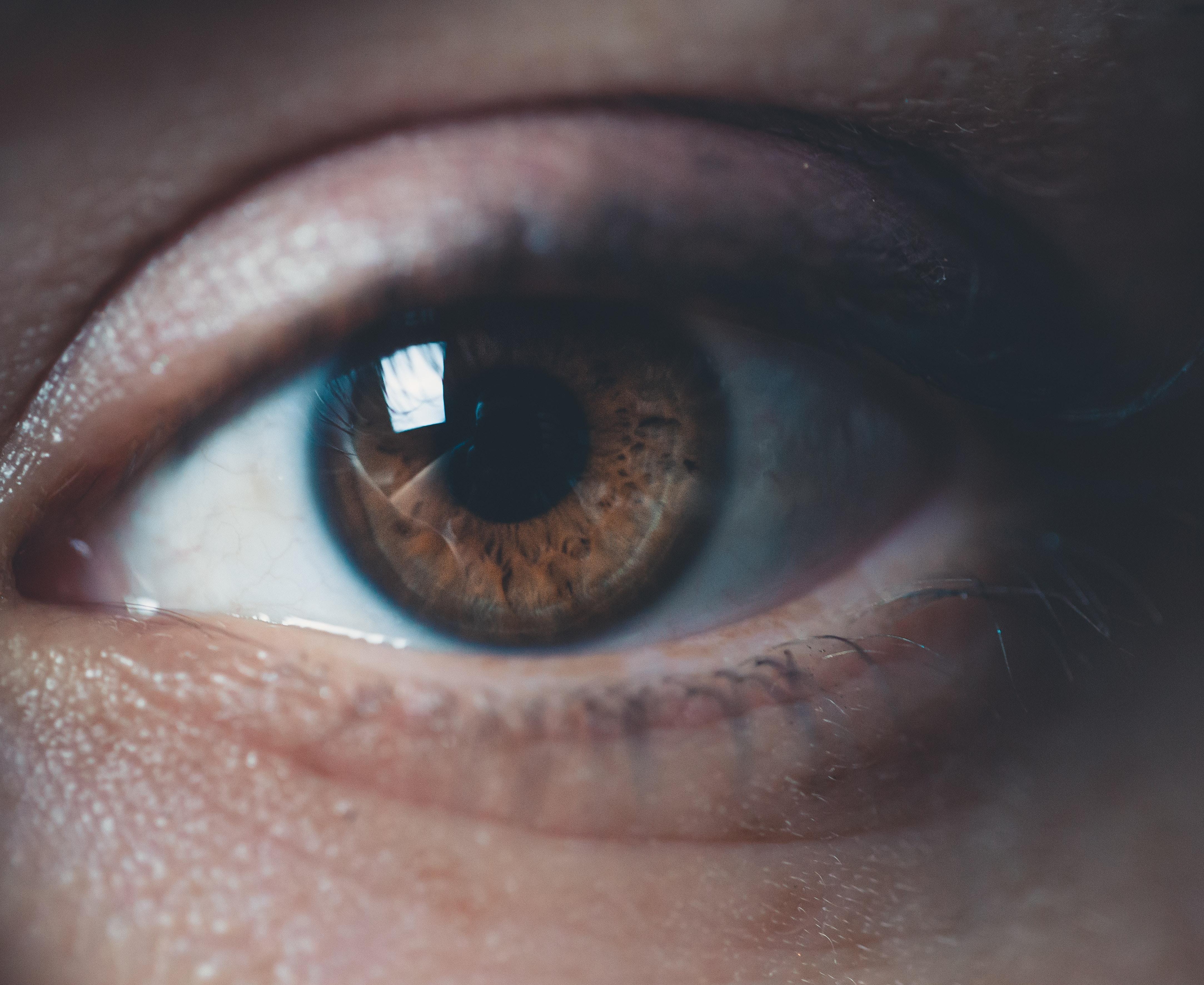 crvenilo oka