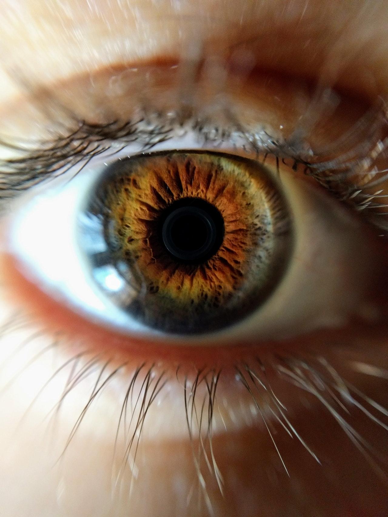 Madež (nevus) u oku