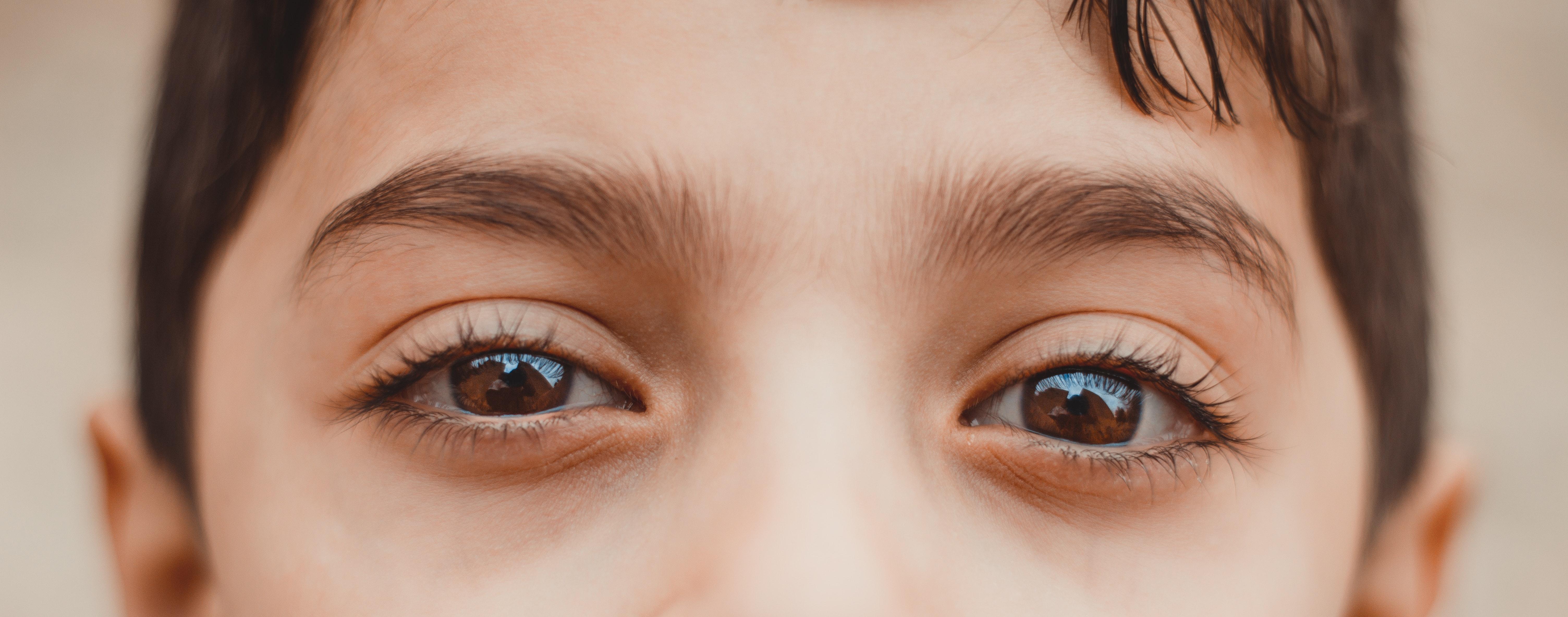 lijeno oko
