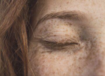Tamni kapci na očima – kako ih se riješiti i izgledati blistavo?
